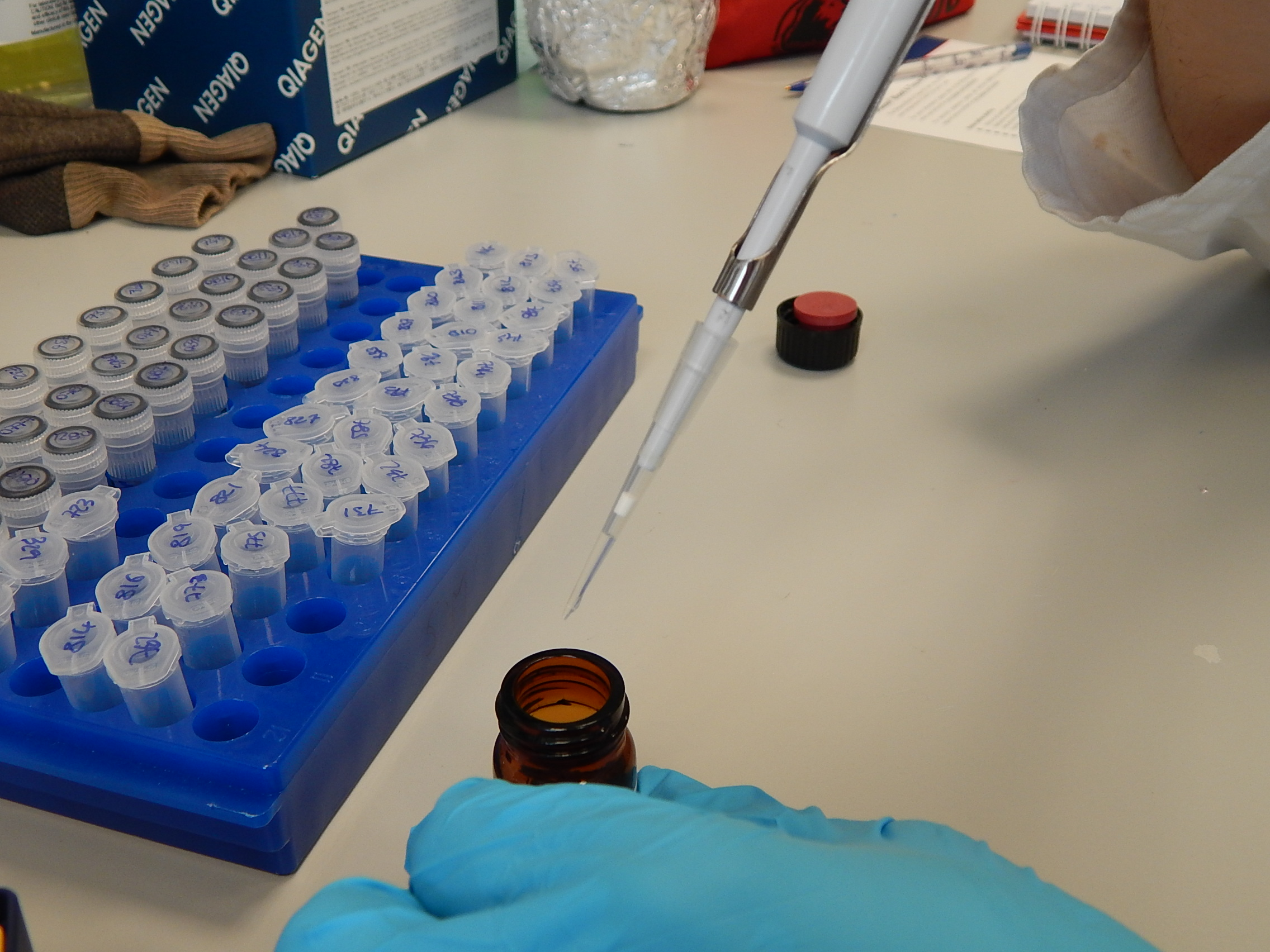 Pipettes have disposable tips to reduce the risk of contamination.